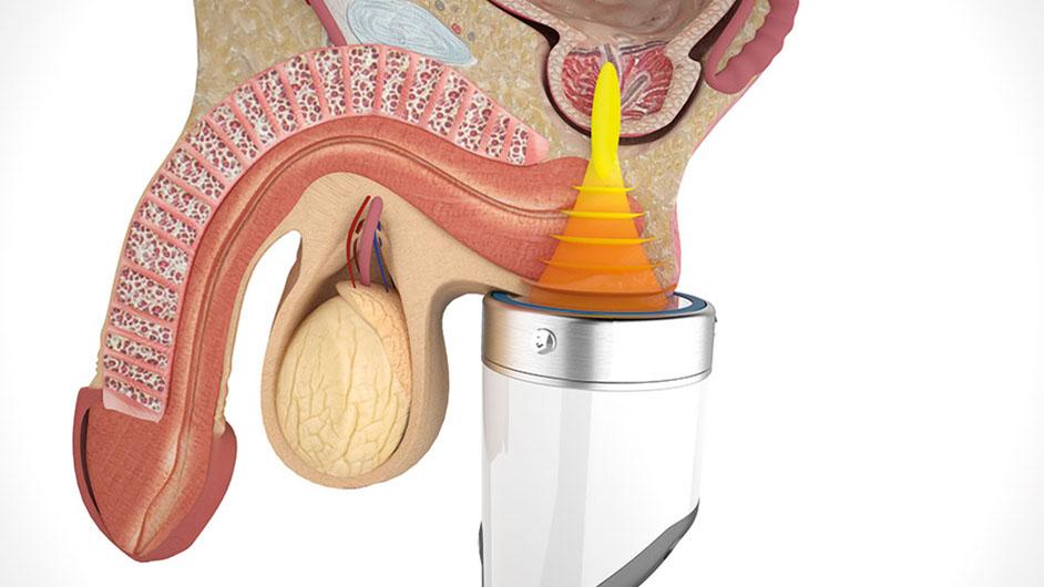 Shock terápia a prosztatitis
