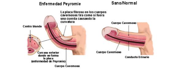peyronie1